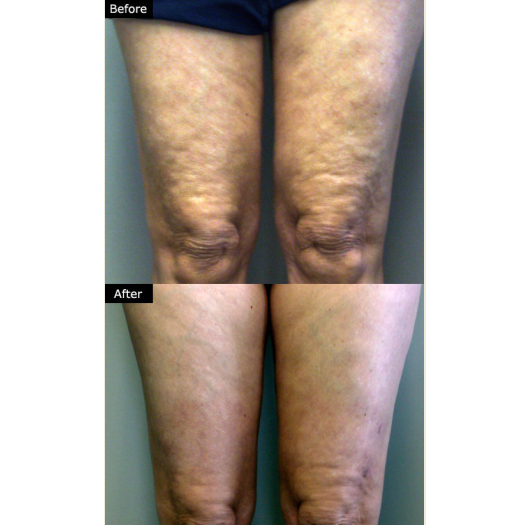 Mesotherapy Lipolysis | Lift and Tuck