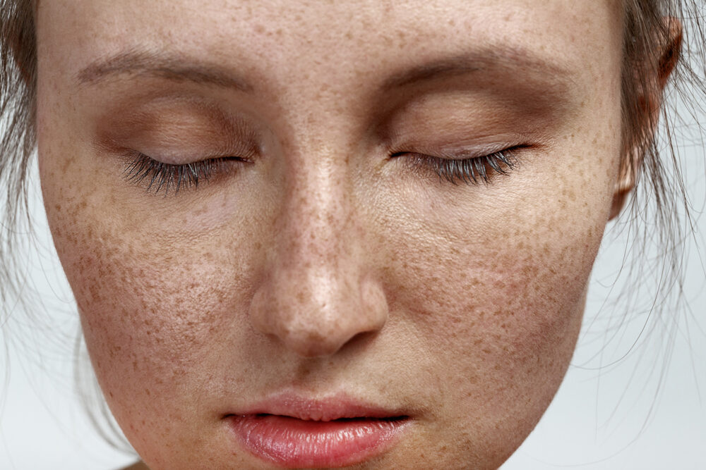 All you need to know about Pigmentation